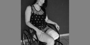 Família se mobiliza para ajudar empresária que teve perna amputada