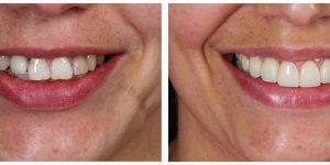 Tratamento realizado por famosos é oferecido pela Odontoclinic Barão Geraldo