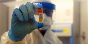 Pesquisadores da Unicamp iniciam elaboração de teste para diagnóstico local do coronavírus